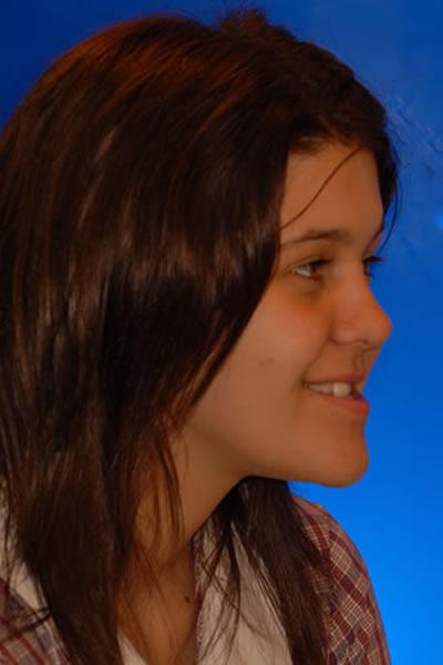 Alix Before Orthodontic Treatment