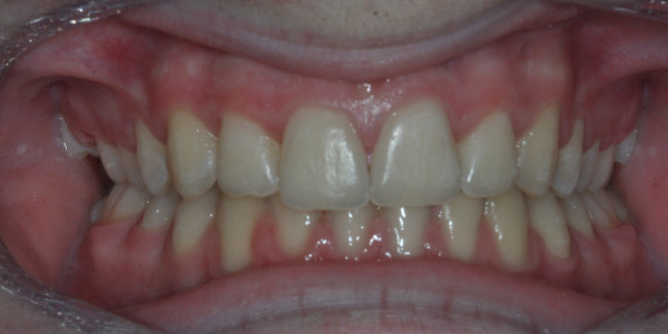 Angus after Orthodontic Treatment