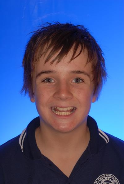 Angus Before Orthodontic Treatment