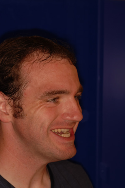 Daniel before Orthodontic Treatment