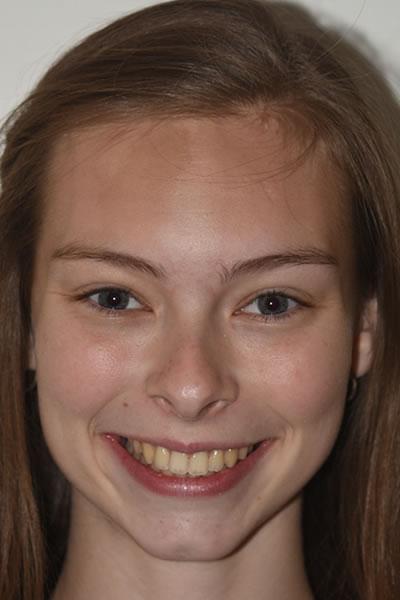 Leonie-Facial-Front-Smile